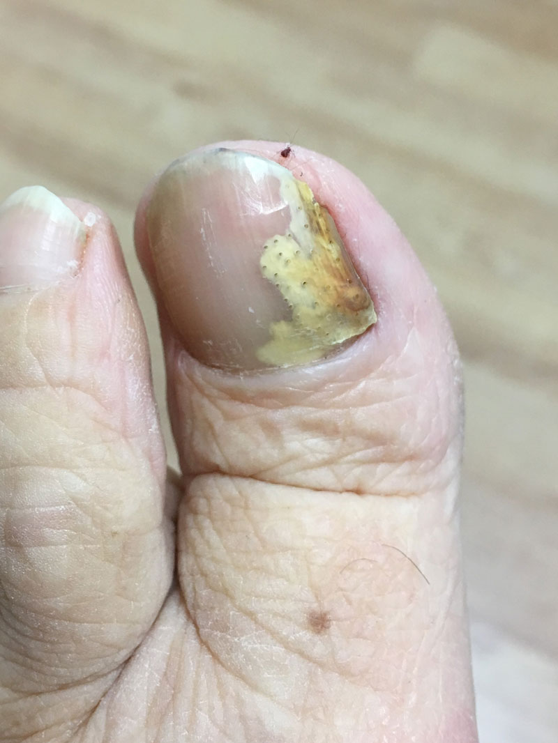 Fungal Nail Infection Treatments In Epsom Surrey By Epsom