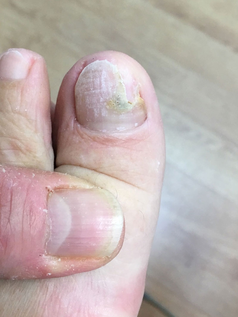 Fungal Nail Infection Treatments in Epsom, Surrey by Epsom Footcare