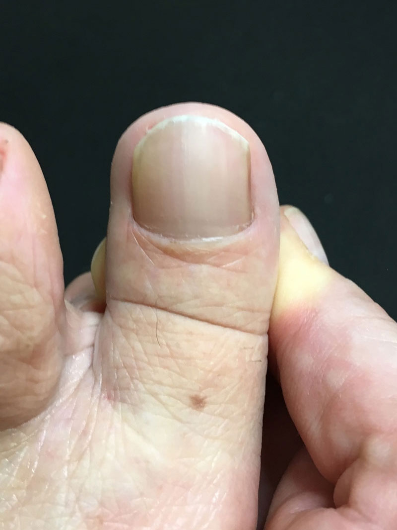 Fungal Nail Infection Treatments In Epsom Surrey By Epsom Footcare